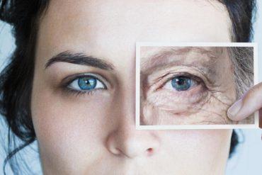 Дело не в возрасте: почему появляются морщины вокруг глаз и как этого избежать